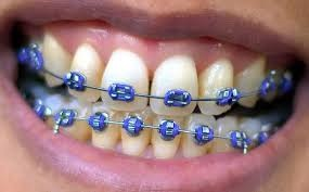 Coloured dental braces
